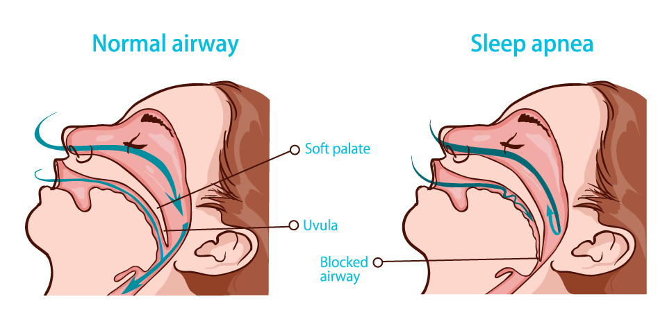 Sleep Apnea vs. Normal Sleep